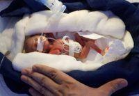 """La bebé prematura de 400 gramos, el """"milagro""""que ha dado esperanza a miles de padres"""